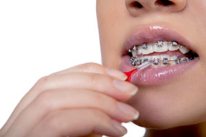 How To Clean Your Braces - Blog - Sparkle Dental - cleaning-braces