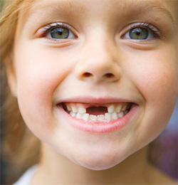 How Are You Going To Pull That Loose Tooth? - Blog - Sparkle Dental - pulling-loose-teeth