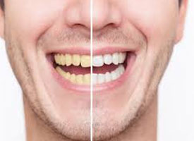 Avoid Staining Your Teeth After Teeth Whitening - Blog - Sparkle Dental - stained-teeth-whitening