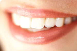 Dr. Monica Assad Answers Your Common Questions - Blog - Sparkle Dental - teeth-grinding