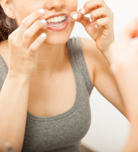 Cosmetic Dentists Finding Increase In Whitening Addiction Among Patients - Blog - Sparkle Dental - whitening-main
